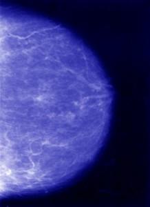 Photo of a mammogram