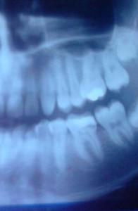 photo of teeth x-ray