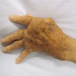 Photo of a hand with rheumatoid arthritis