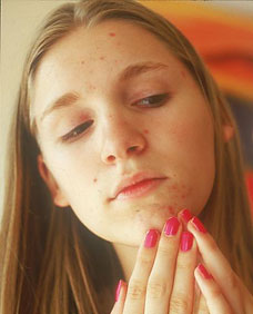 Photo of a young women with acne