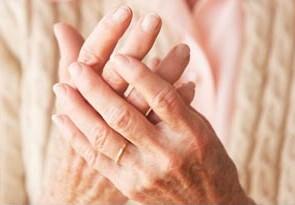 Photo of arthritic hands