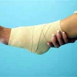 Photo of a sprained ankle with an elastic bandage on it
