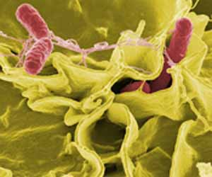 photo of salmonella bacterium