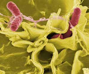 photo of salmonella bacterium